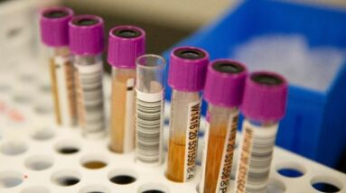 Kerala records 1,239 fresh coronavirus infections; 1,766 recoveries